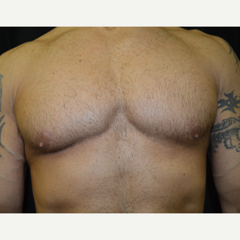 35-44 year old man treated with Male Breast Reduction after 3181603