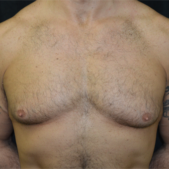 35-44 year old man treated with Male Breast Reduction before 3181603