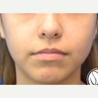 18-24 year old woman treated with Lip Augmentation before 2725516