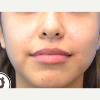 18-24 year old woman treated with Lip Augmentation after 2725516