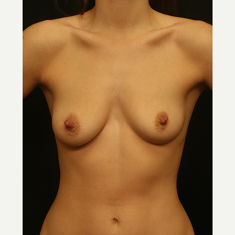 25-34 year old woman treated with Breast Augmentation before 2830412