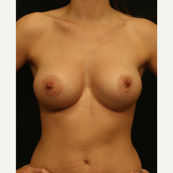 25-34 year old woman treated with Breast Augmentation after 2830412