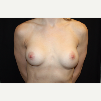 31 year old female with Natrelle breast implants before 2993249