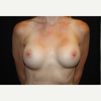 31 year old female with Natrelle breast implants after 2993249