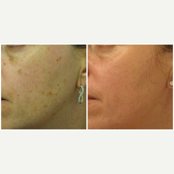 45-54 year old woman treated with Laser Treatment before 3136912