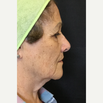 65-74 year old woman treated with Microneedling