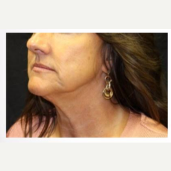 45-54 year old woman treated with Ultherapy before 3424054