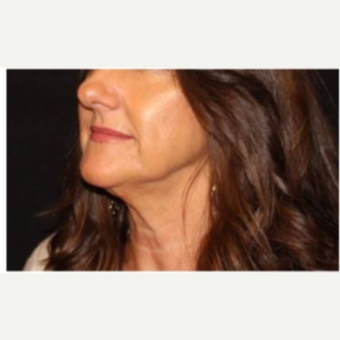 45-54 year old woman treated with Ultherapy after 3424054