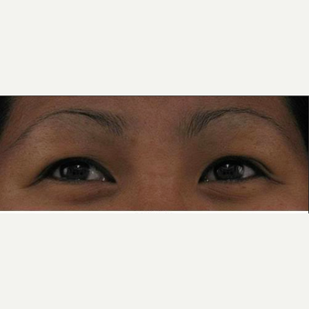 35-44 year old woman treated with Natural Lash Conditioner before 2314462