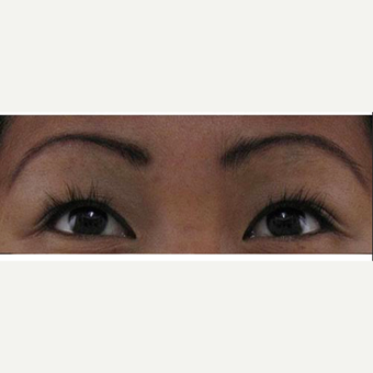 35-44 year old woman treated with Natural Lash Conditioner after 2314462