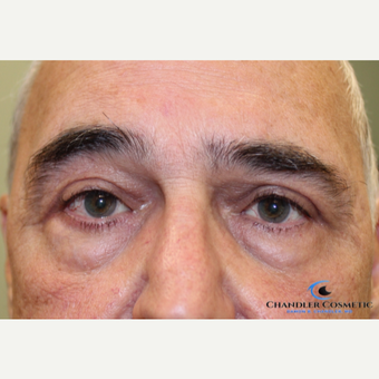 65-74 year old man treated with Ptosis Surgery