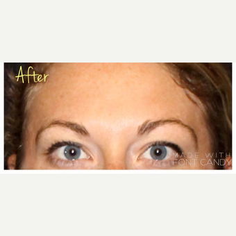 25-34 year old woman treated with Ultherapy after 3424005