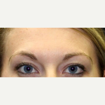 25-34 year old woman treated with Ultherapy before 3424005