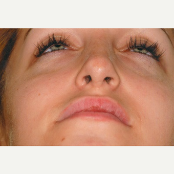 18-24 year old woman treated with Rhinoplasty before 3465225