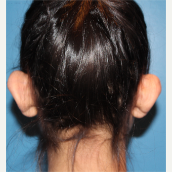 25-34 year old woman treated with Ear Surgery before 3289406