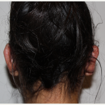 25-34 year old woman treated with Ear Surgery after 3289406