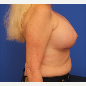 48- year old woman treated with Breast Implant Revision after 3163792