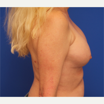 48- year old woman treated with Breast Implant Revision before 3163792