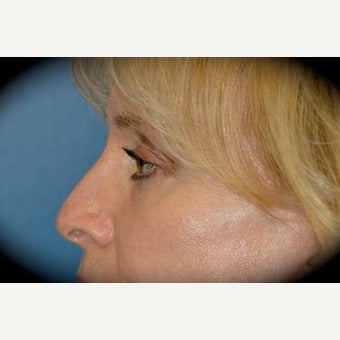 Eye Bags Treatment after 2554008