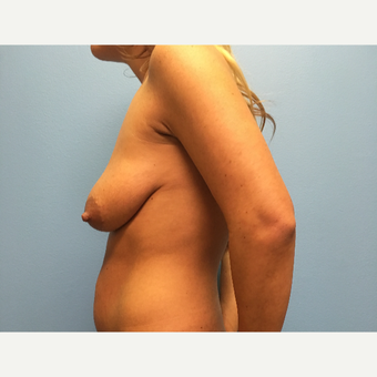 29 year old woman treated with Breast Lift with Implants before 3065383