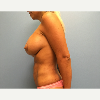 29 year old woman treated with Breast Lift with Implants after 3065383