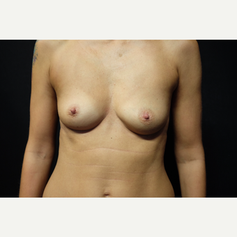 35-44 year old woman treated with Breast Augmentation before 3753885