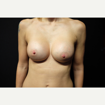 35-44 year old woman treated with Breast Augmentation after 3753885