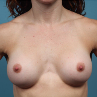 35 year old woman treated with Breast Augmentation after 3149684