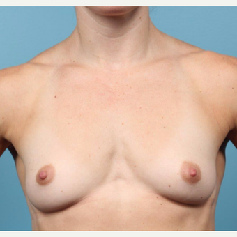 35 year old woman treated with Breast Augmentation before 3149684