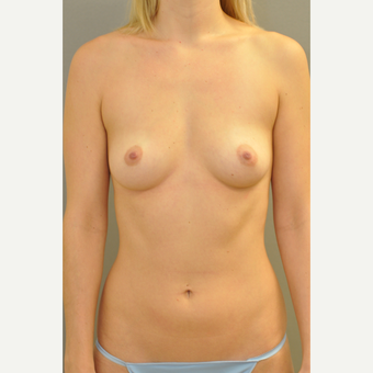 25-34 year old woman treated with Breast Augmentation before 3412431