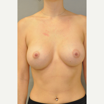 25-34 year old woman treated with Breast Augmentation after 3412431