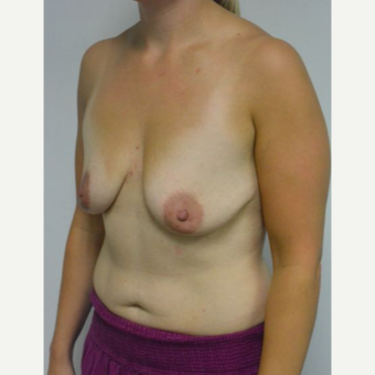 25-34 year old woman treated with Breast Lift with Implants before 3219898