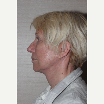 55-64 year old woman treated with Facelift after 3629388