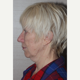 55-64 year old woman treated with Facelift before 3629388