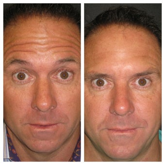 """Brotox""/Botox Before & After Overall Result after 1013845"