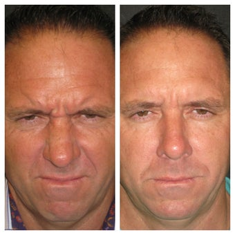 """Brotox""/Botox Before & After Overall Result 1013845"