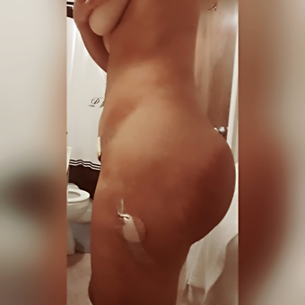 25-34 year old woman treated with Brazilian Butt Lift after 2574569