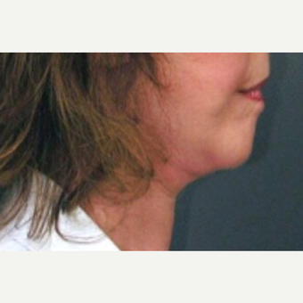 55-64 year old woman treated with Neck Lift after 3022751