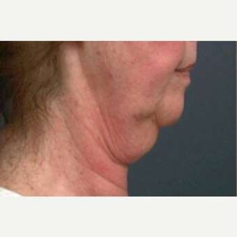 55-64 year old woman treated with Neck Lift before 3022751