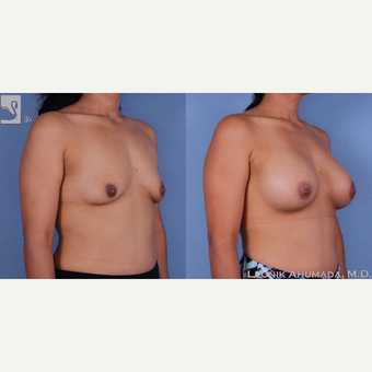 35-44 year old woman treated with Breast Augmentation 3093363
