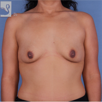 35-44 year old woman treated with Breast Augmentation before 3093363