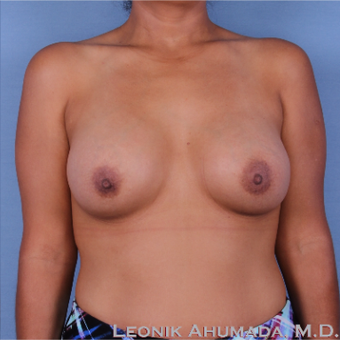 35-44 year old woman treated with Breast Augmentation after 3093363
