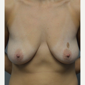 35-44 year old woman treated with Breast Lift with Implants before 3092872