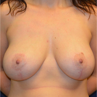 35-44 year old woman treated with Breast Lift with Implants after 3092872