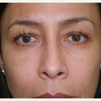 Facial Rejuvenation with Injectable Fillers after 3292504