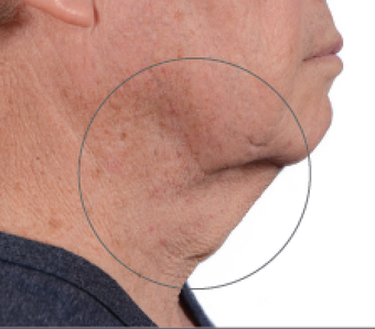 65-74 year old man with excessive double chin, benefited from the Liftique Procedure to Tighten Skn