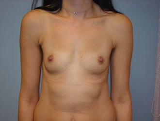 Breast augmentation with breast implants before 259915