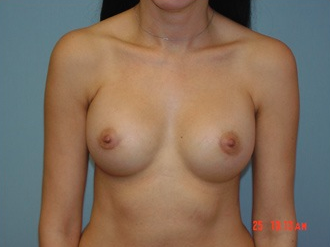 Breast augmentation with breast implants after 259915