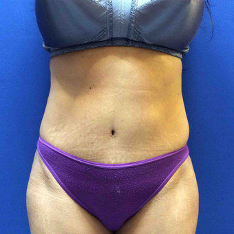 45-54 year old woman treated with Tummy Tuck after 3175347