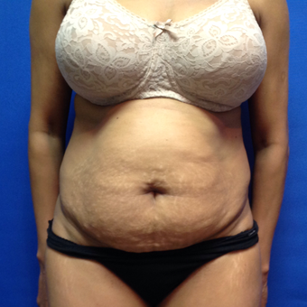 45-54 year old woman treated with Tummy Tuck before 3175347